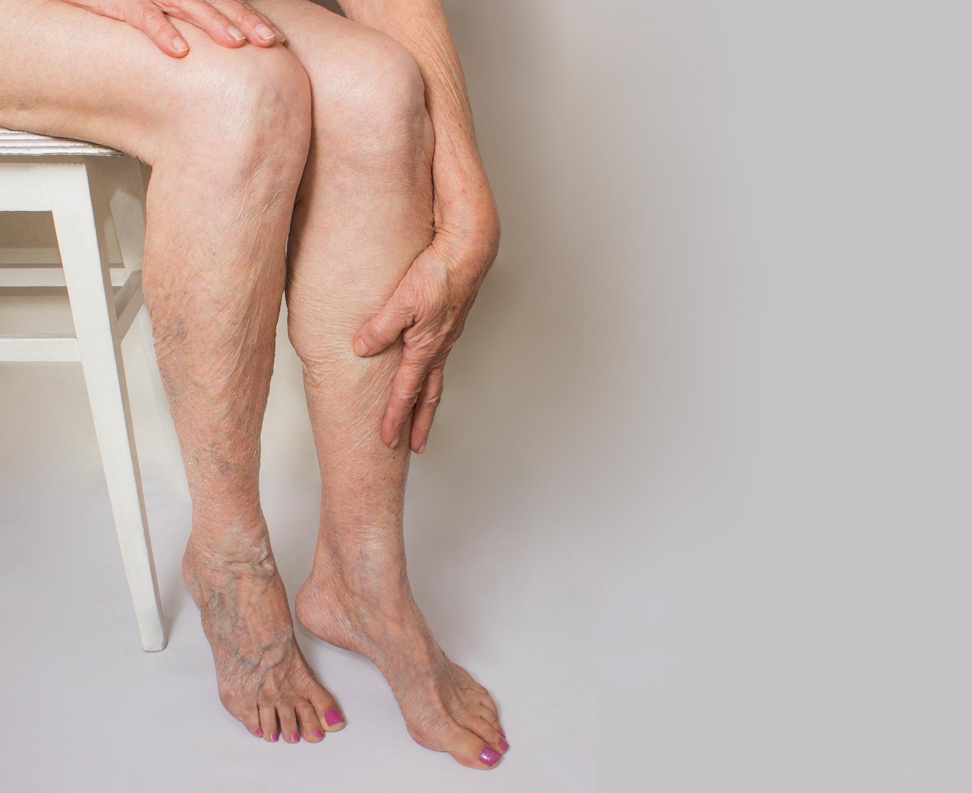 Quando dores intensas ocorrem em apenas uma das pernas, vermelhidão, inchaço ou endurecimento da musculatura na região, podem ser sinais de trombose.